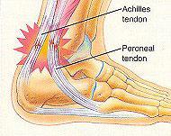 Common Injuries - Achilles tendonitis